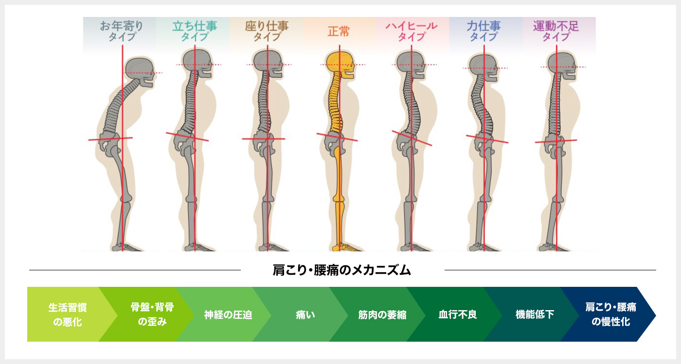 肩こり・腰痛のメカニズム